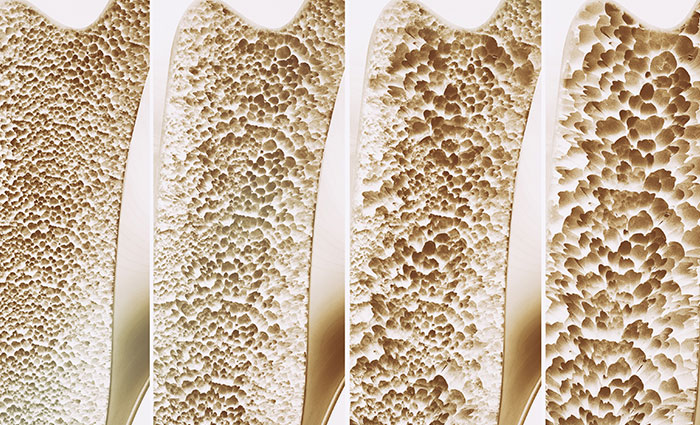4 Important Things to Know About Osteoporosis